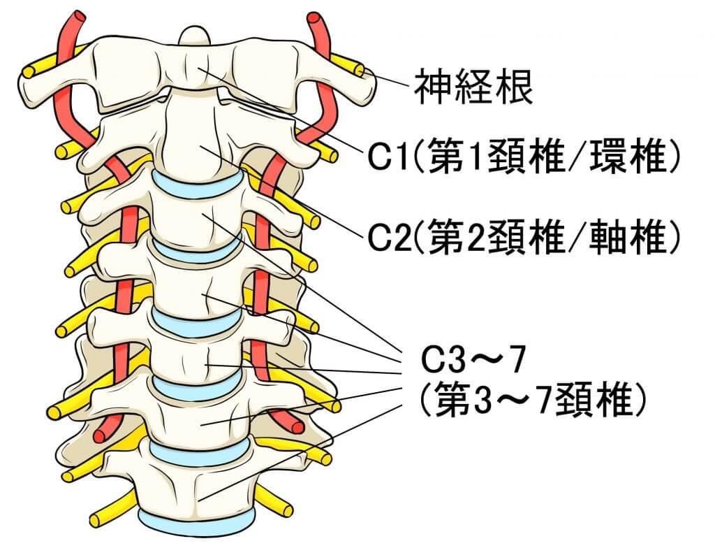 神経根症型